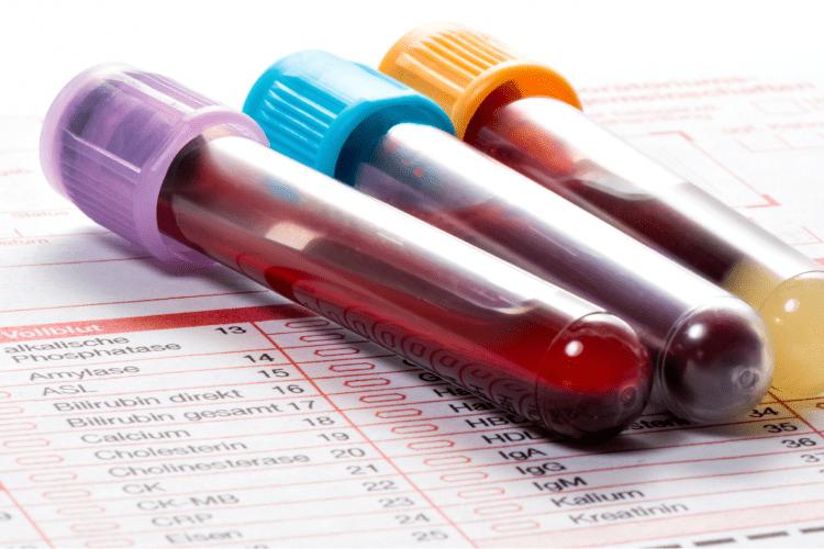 Understanding Your Pet's Bloodwork